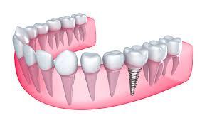 Ce este implantul dentar si care sunt beneficiile acestui tratament?