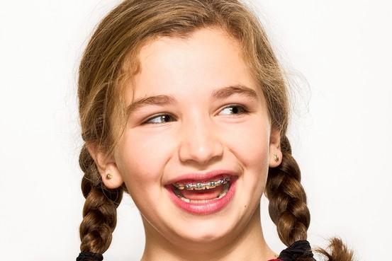 6 mituri despre aparatul dentar