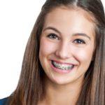 5 intrebari si raspunsuri despre aparatul dentar