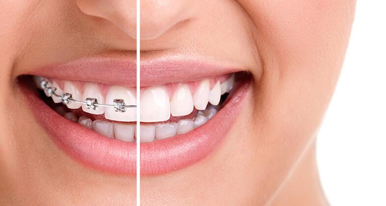 Iata 7 motive pentru care sa alegi un aparat dentar de calitate!