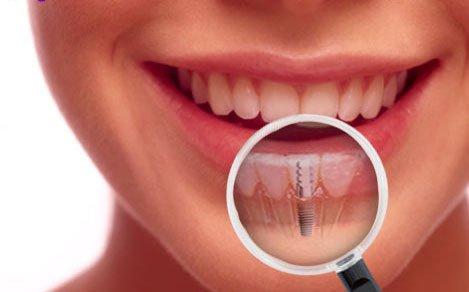 Ce este edentatia si care sunt etapele rezolvarii acestei afectiuni prin implanturi dentare